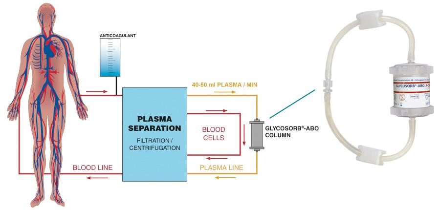 Glycosorb-ABO